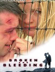 Broken and Bleeding