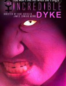 The Incredible Dyke